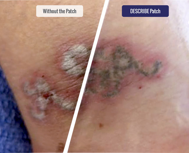 With/Without DESCRIBE patch