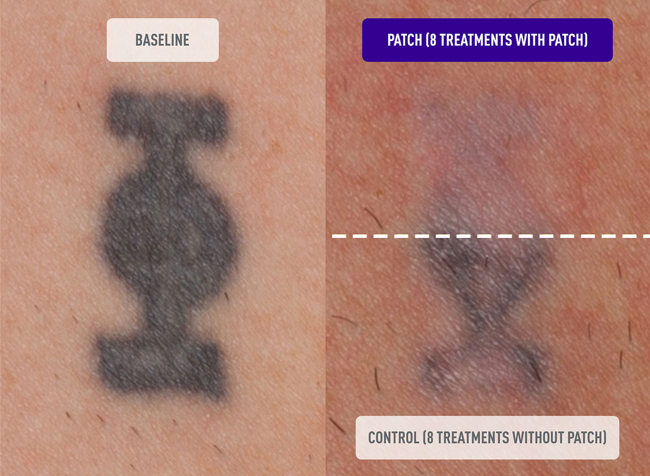 DESCRIBE Patch Before and After Tattoo Removal Results Photo after 8 Treatments with Patch