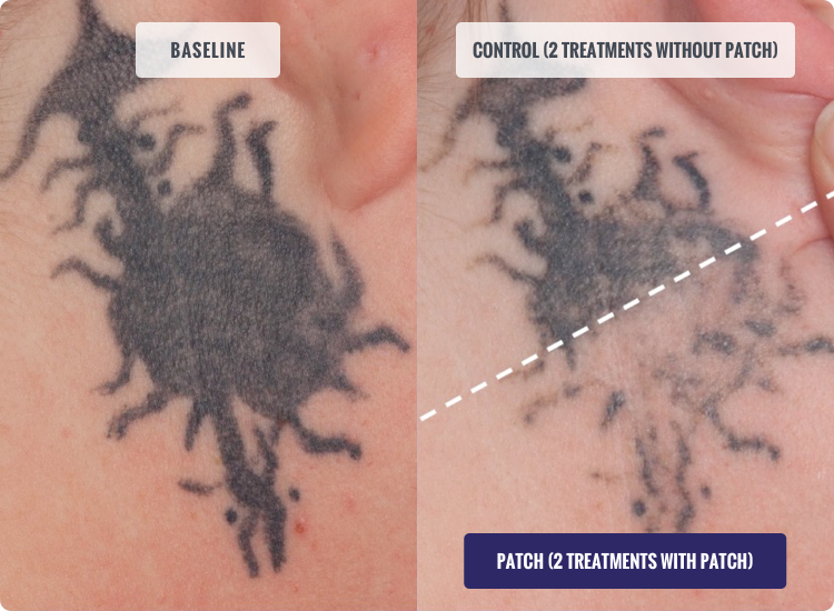 DESCRIBE Patch Before and After Tattoo Removal Results Photo after 2 Treatments with Patch